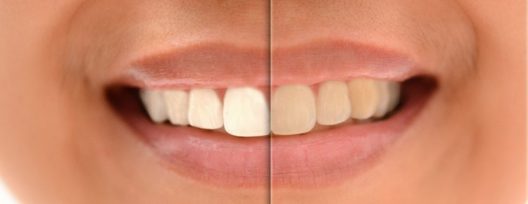 after before whiten teeth