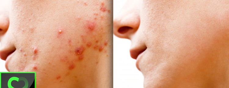 how to cure remove acne pimpes zits scars in photoshop
