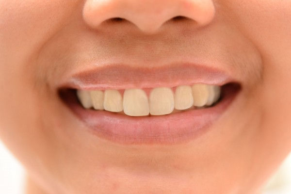 teeth 600x400 How to Whiten and Brighten Teeth in Photoshop