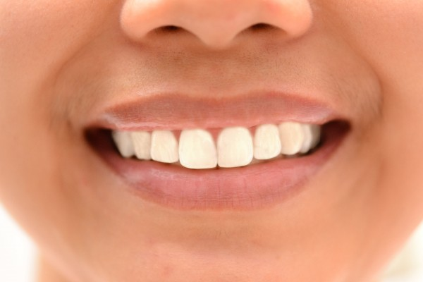 whiten teeth 600x400 How to Whiten and Brighten Teeth in Photoshop